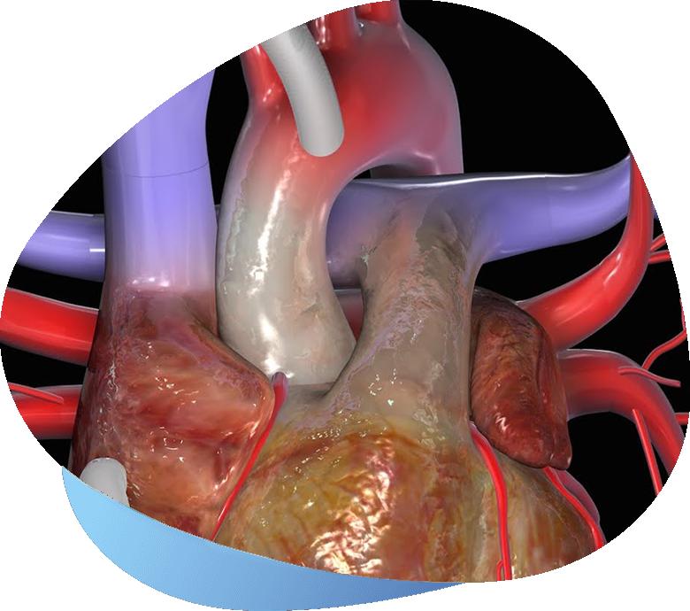 cardiochirurgia-bolla3